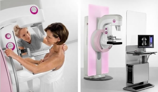 slide-mobile-mammografia-digitale