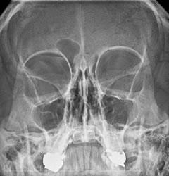 radiologia_cranio