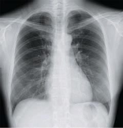 radiologia_torace